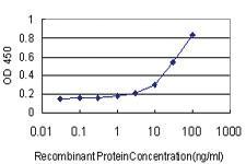 Anti-ABHD5 Mouse Monoclonal Antibody [clone: 1F3]